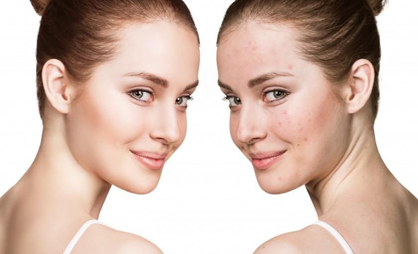 Jak dbać o cerę trądzikową? Dowiedz się jak pielęgnować skórę trądzikową?